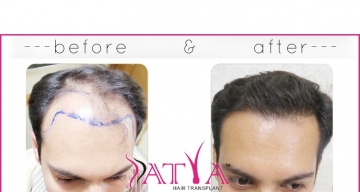 Before-and-After-images-of-Nitin