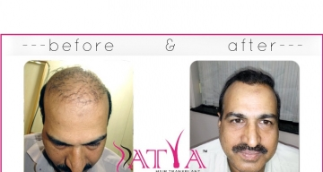 FUE-Before-and-After