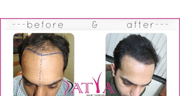 FUE-Sumit-before-and-after