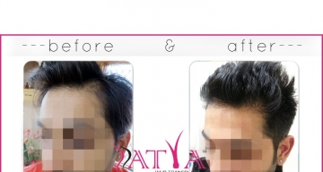 FUE-deepak-before-and-after1