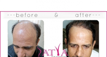 FUT-Before-and-After