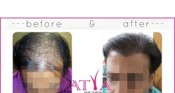 Synthetic-Hair-Transplant-result1