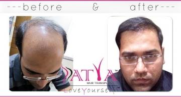 FUE-Patient-Dr-Anurag-Befor