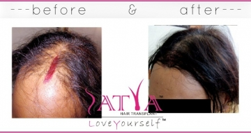 1000-Nido-Synthetic-Hair-Transplant-Surgery-Results