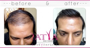 Before-and-After-Nido-Synthetic-Hair-Surgery