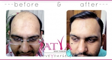 Before-and-After-Synthetic-Hair-Transplant