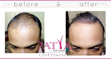 Nido-1000-Synthetic-Hair-Transplant-result