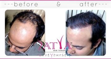 Nido-2000-Synthetic-Hair-Transplant-Results