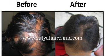 Alopecia-areata-1