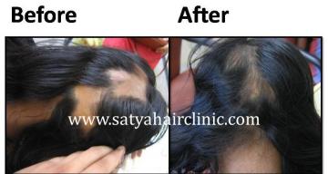 Alopecia-areata-2