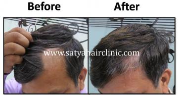 Alopecia-areata-6