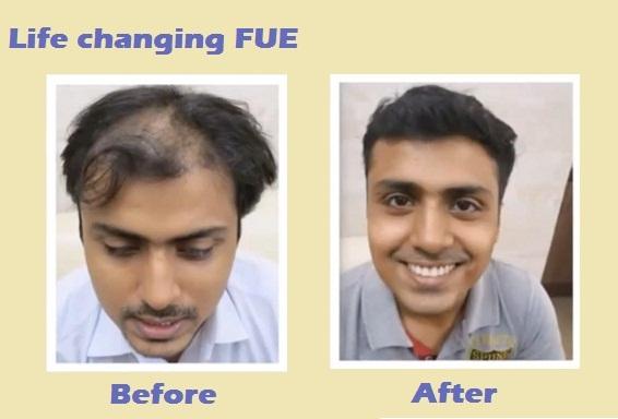 Natural hair transplant clinic