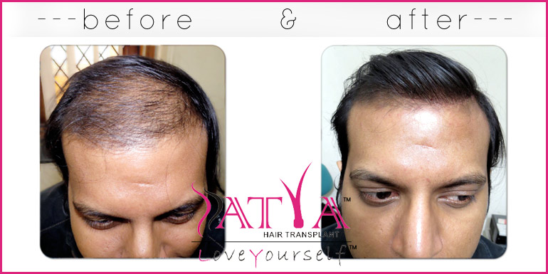 Artificial hair transplant